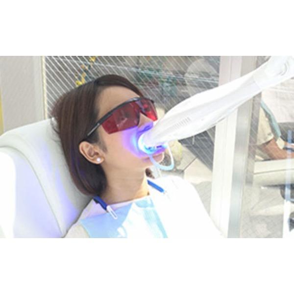 歯のセルフホワイトニング 【神奈川県】